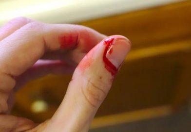 Nằm mơ thấy đứt tay, đứt ngon tay chảy máu là điềm báo gì